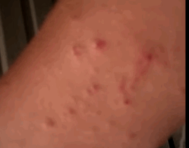 chigger bite pictures on humans