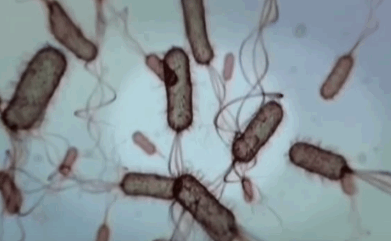 E Coli in Urine - Culture, Causes and Prevention | Med Mum