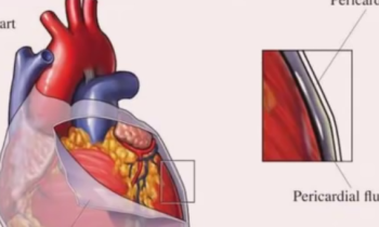 precardial sac picture