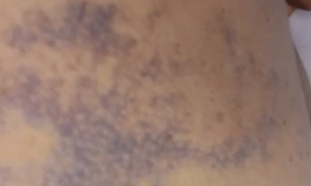 Ecchymosis pictures