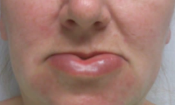 allergic reaction rash face