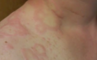 allergic reaction rash images
