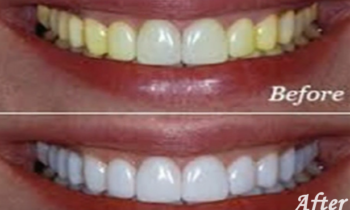 zoom whitening before and after images