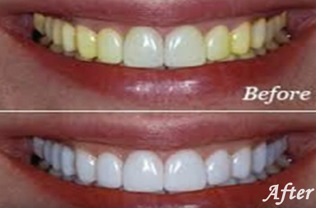 Zoom Whitening Side Effects Pain Cost Procedure Med Mum