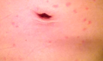 sea lice bites rash pictures