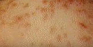 sea lice rash pictures