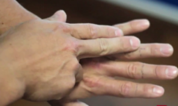 Tingling In Fingertips Causes Treatment Med Mum