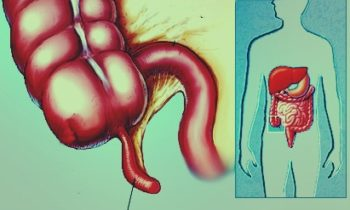 Appendicitis Pain images