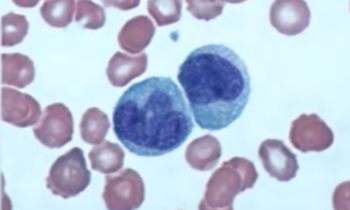 monocytes pictures