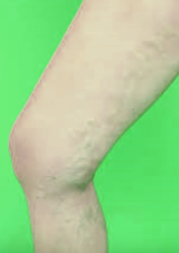 Broken Capillaries On Legs Treatment Pictures Causes